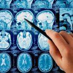 Краніофарінгіома: причини захворювання, основні симптоми, лікування і профілактика