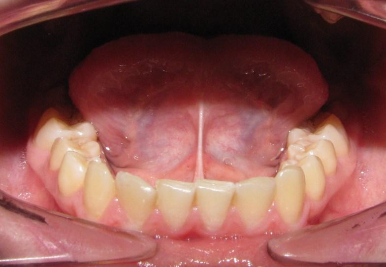Чи потрібно підрізати коротку вуздечку язика дитині?