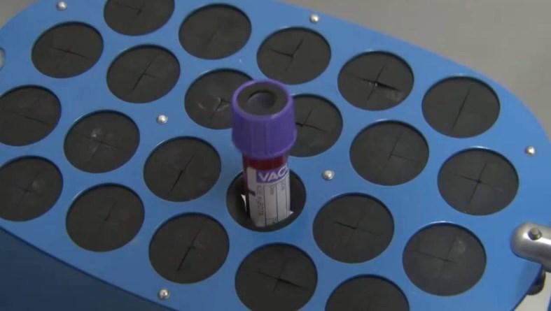 Загальний аналіз крові