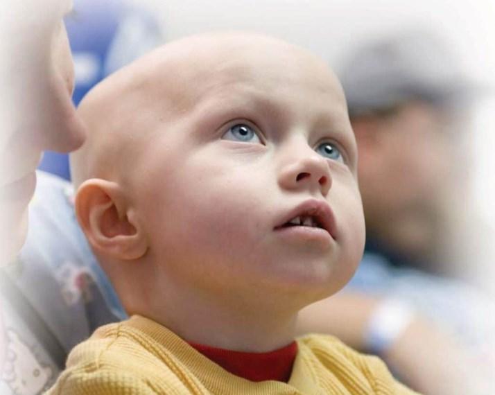Лейкози: Клінічні прояви та лікування