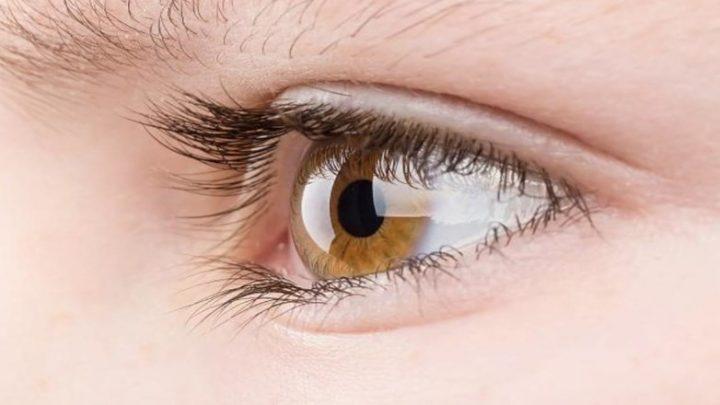 Ксантелазма: причини захворювання, основні симптоми, лікування і профілактика