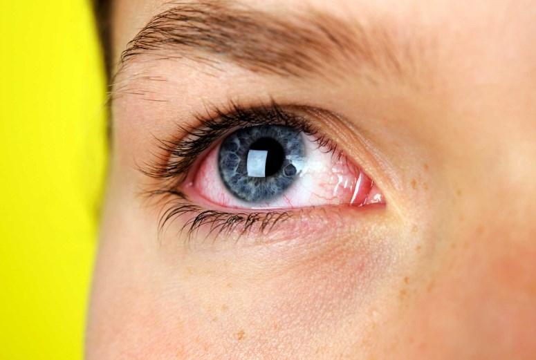 Ксерофтальмія - симптоми, діагноз, причини та рекомендації