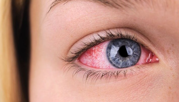 Ксерофтальмія: причини, основні симптоми, лікування