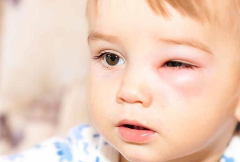 Лагофтальм: причини, симптоми, діагностика, лікування