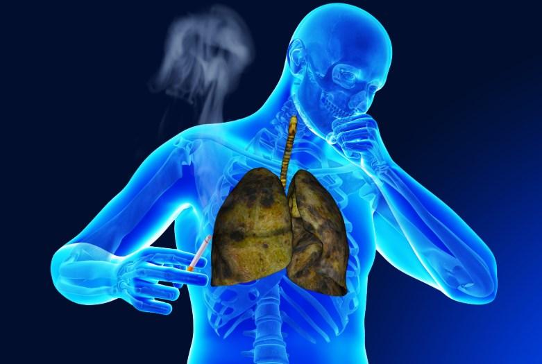 Легенева гіпертензія у хворих на системну склеродермію