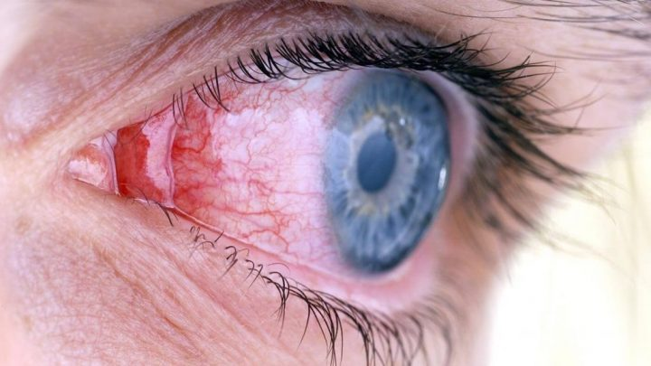 Кріптофтальм: причини захворювання, основні симптоми, лікування і профілактика