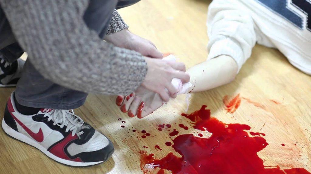 Кровотеча та перша допомога при кровотечах