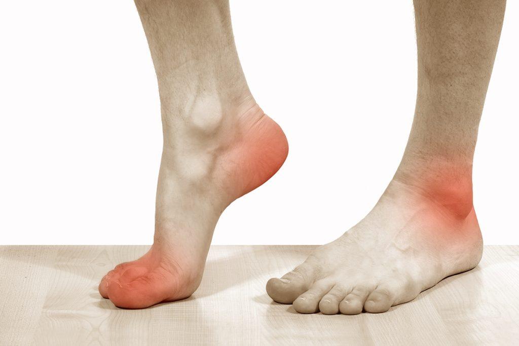 Маршова стопа - причини, симптоми, діагностика та лікування