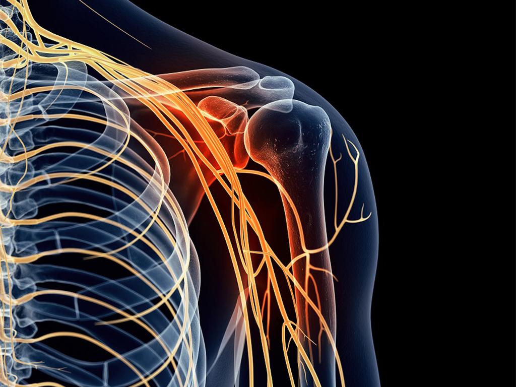 Невралгія плечового нерва симптоми лікування