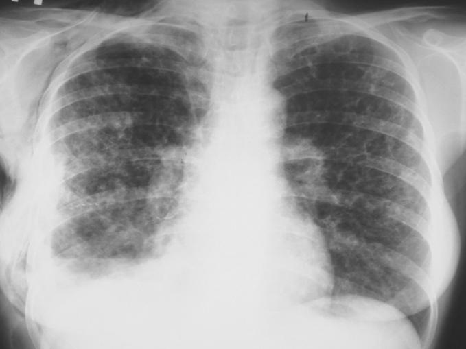 Лімфангіолейоміоматоз: причини, симптоми, діагностика