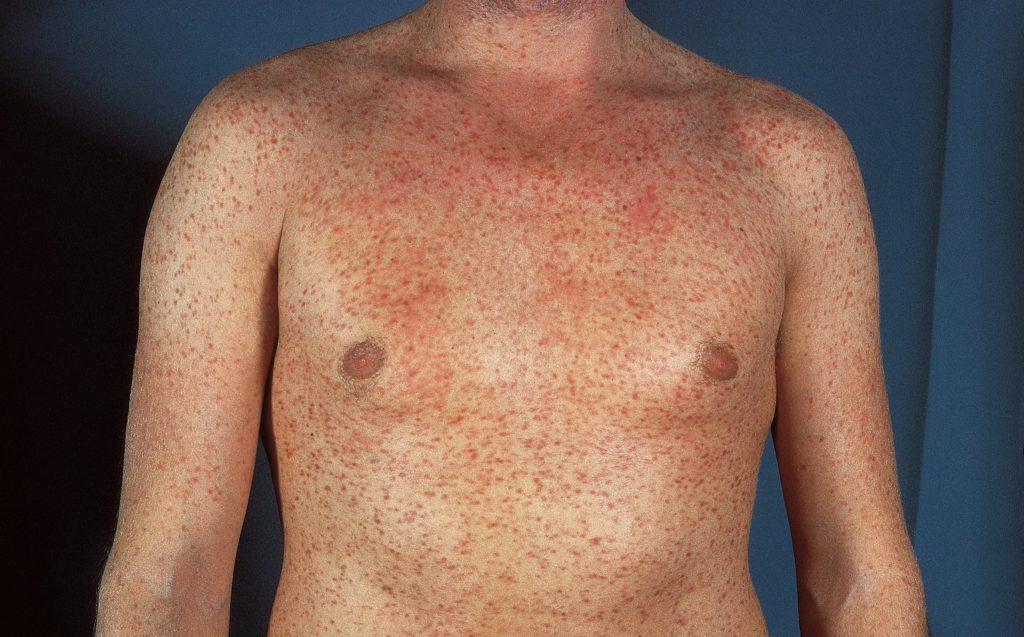 Мастоцитоз: причини захворювання, основні симптоми, лікування і профілактика