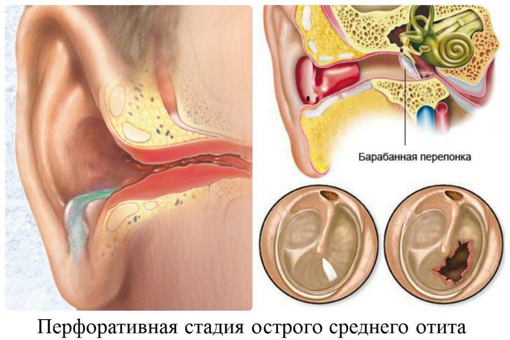Зовнішній отит (гострий) - Захворювання вуха, горла і носа
