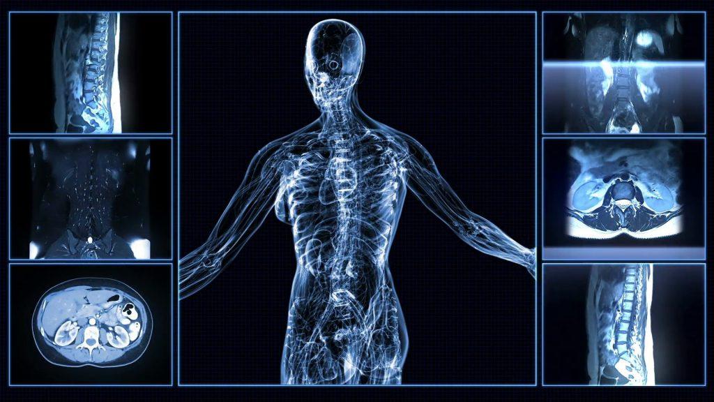 Невринома: причини захворювання, основні симптоми, лікування і профілактика