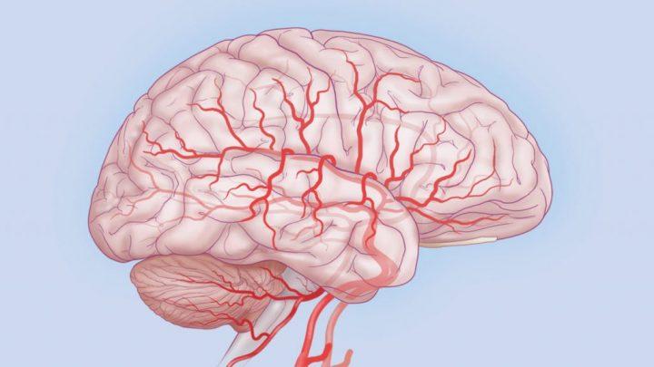 Нейросифилис: причини захворювання, основні симптоми, лікування і профілактика
