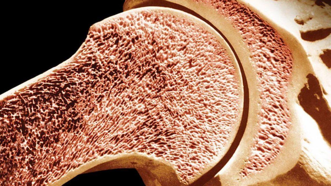 Мієломна хвороба або плазмоцитома: причини захворювання, основні симптоми, лікування і профілактика