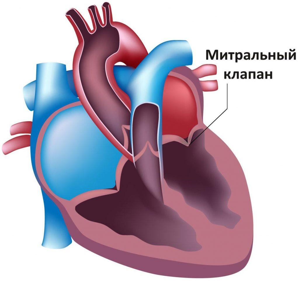 Недостатність мітрального клапана: причини захворювання, основні симптоми, лікування і профілактика