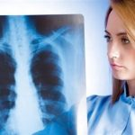 Міліарний туберкульоз: причини захворювання, основні симптоми, лікування і профілактика