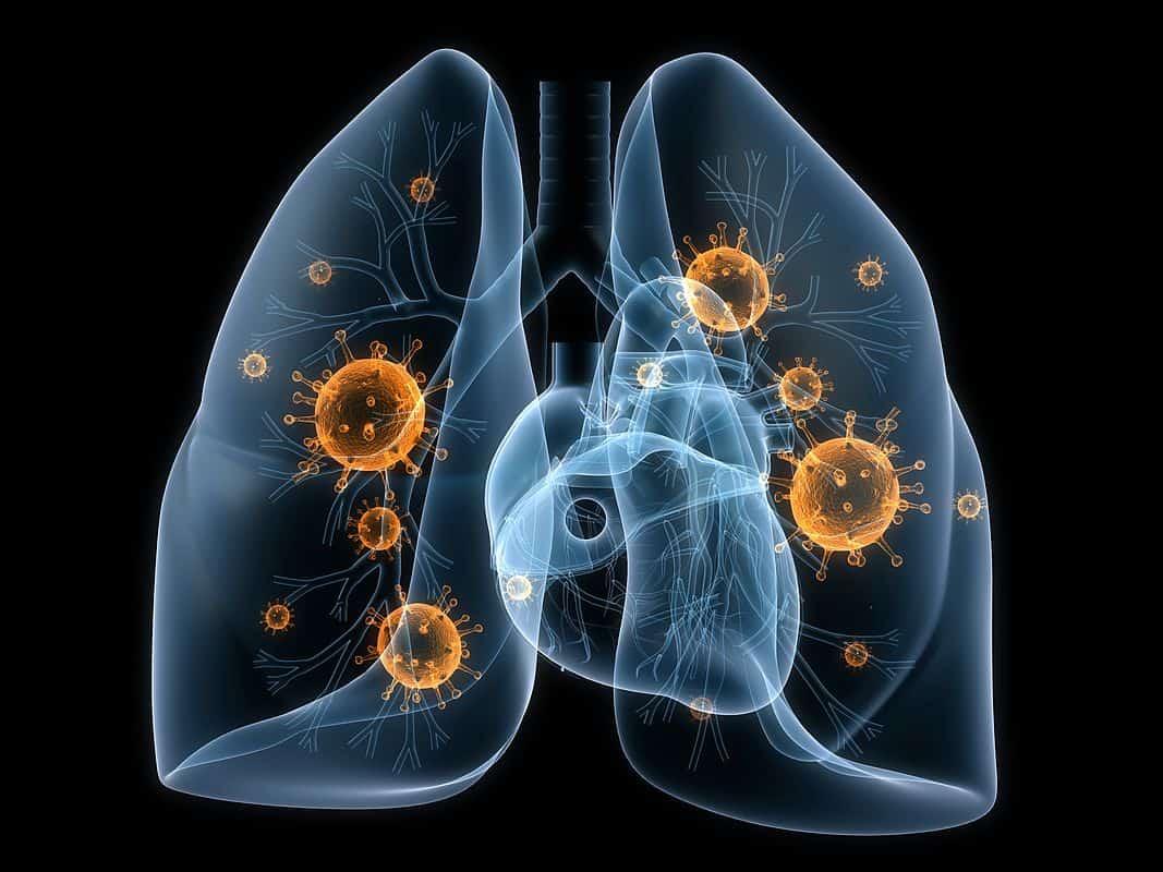 Мікоплазмоз: причини захворювання, основні симптоми, лікування і профілактика