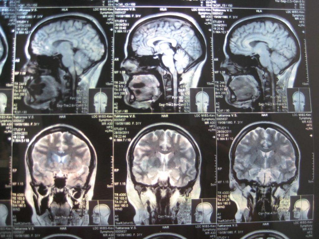 Синдром Арнольда-Кіарі: причини, симптоми, діагностика