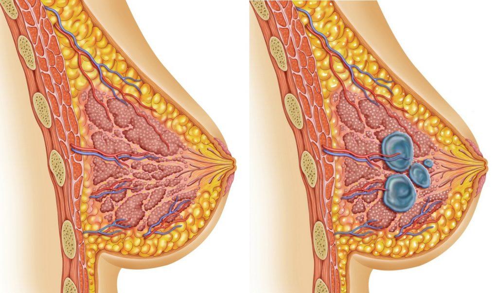 Мастопатія: причини, симптоми, діагностика та лікування