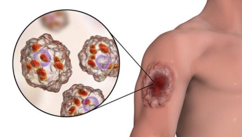 Шкірний лейшманіоз: причини захворювання, основні симптоми, лікування і профілактика