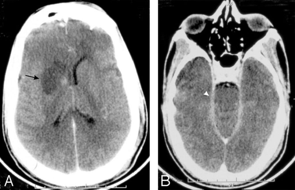 Менінгоенцефаліт: причини захворювання, основні симптоми, лікування і профілактика