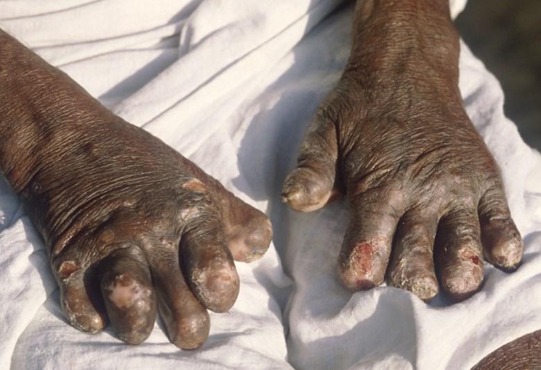 Лепра: причини, симптоми, діагностика, лікування та профілактика