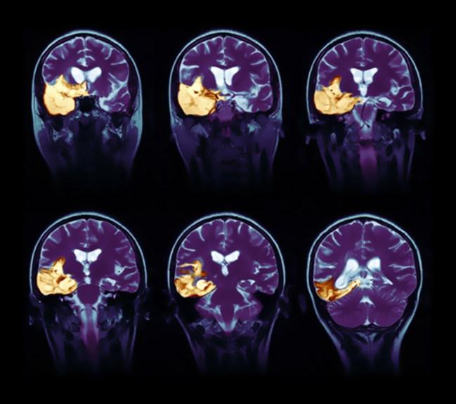 Летаргічний енцефаліт: причини захворювання, основні симптоми, лікування і профілактика