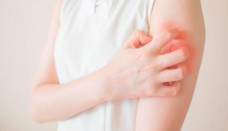 Лейшманіоз: причини захворювання, основні симптоми, лікування і профілактика