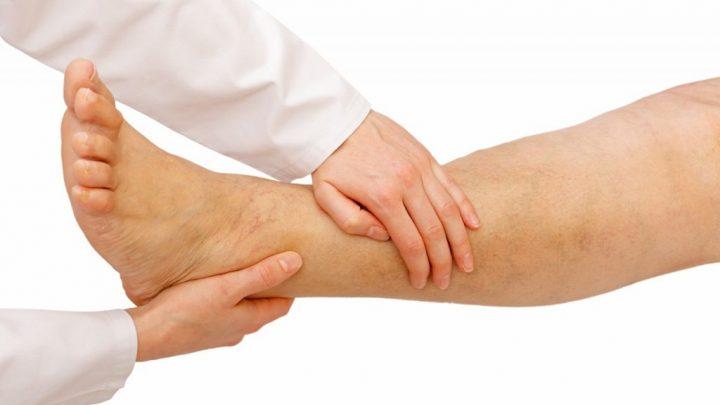 Облітеруючий тромбангіїт: причини захворювання, основні симптоми, лікування і профілактика