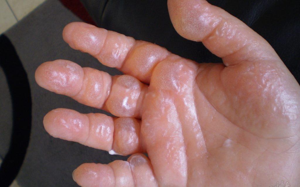 Опік: причини захворювання, основні симптоми, лікування і профілактика