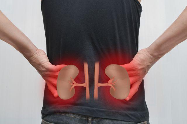 Хронічний гломерулонефрит: причини захворювання, основні симптоми, лікування і профілактика