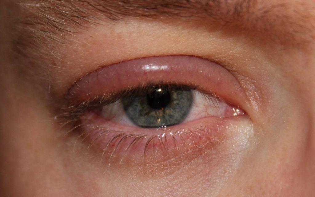 Онхоцеркоз: причини захворювання, основні симптоми, лікування і профілактика