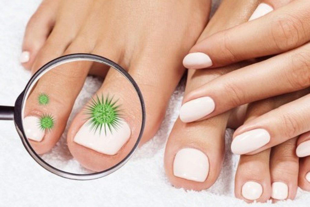Оніхомікоз (грибок нігтів): лікування і профілактика