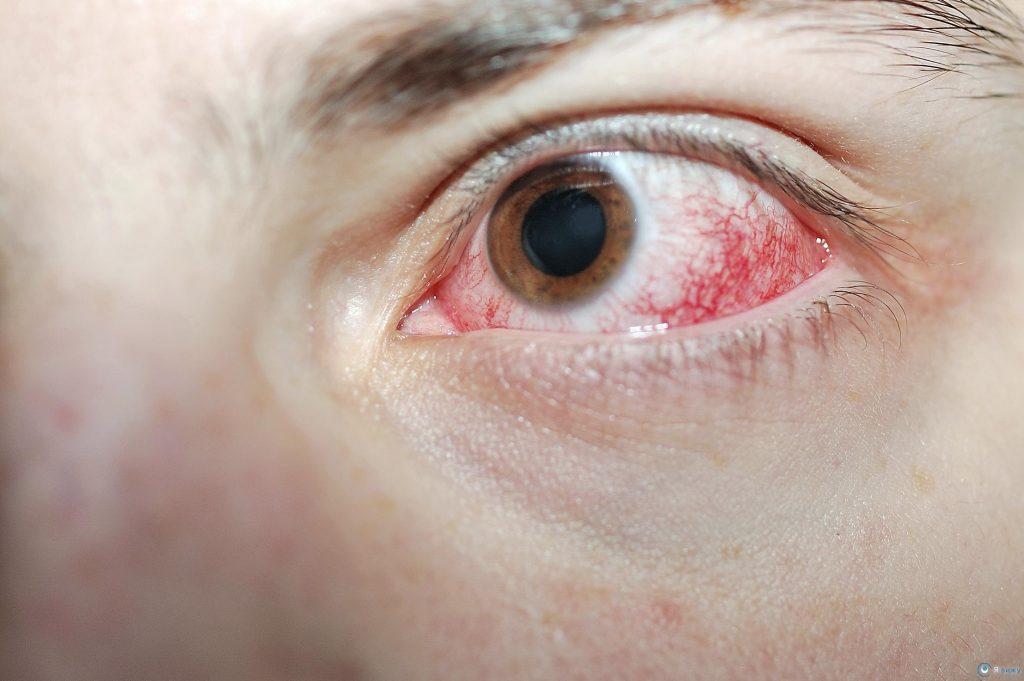Типи пошкодження слизової оболонки ока