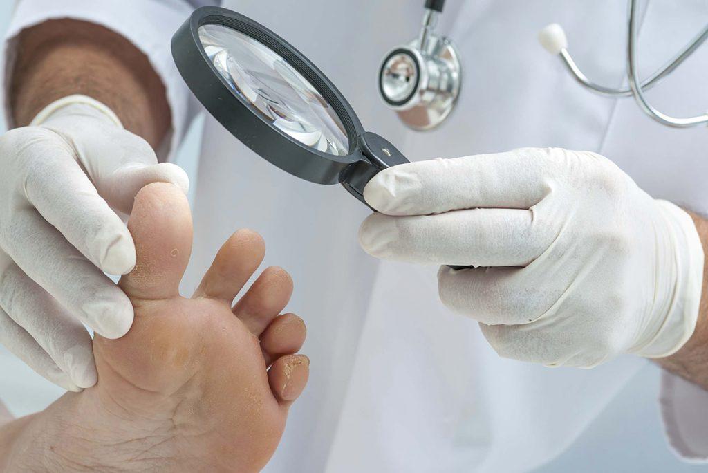 Оніхомікоз (грибок нігтів): причини захворювання, основні симптоми, лікування і профілактика