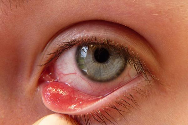Онхоцеркоз: основні симптоми