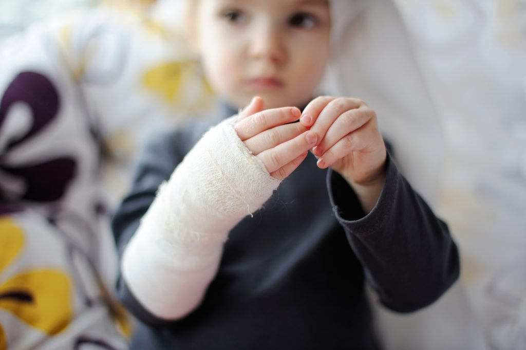 Опіки шкіри - Опіки - Перша допомога при травмах