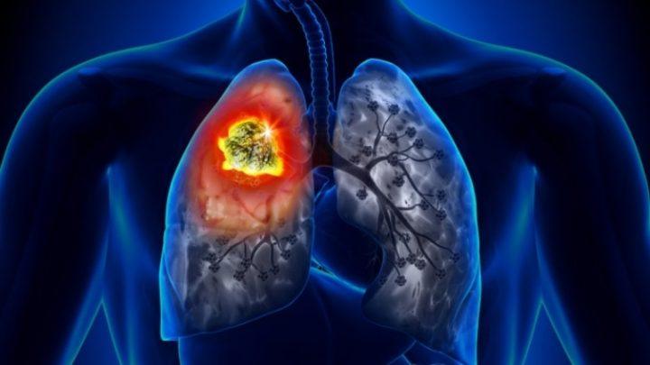 Облітеруючий бронхіоліт: причини захворювання, основні симптоми, лікування і профілактика