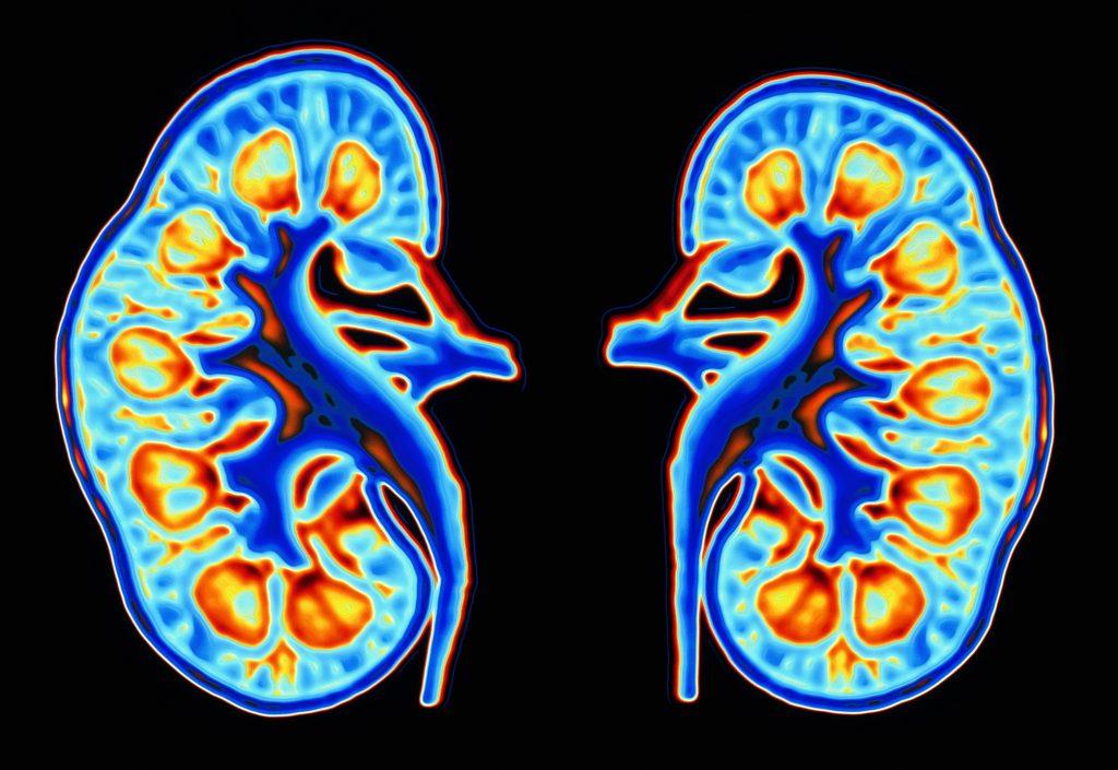 Гломерулонефрит (ГН) - Клубочковi захворювання