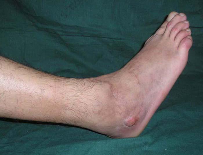 Гематогенний остеомієліт: причини захворювання, основні симптоми, лікування і профілактика