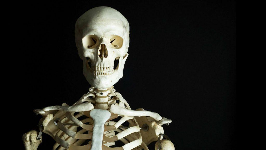 Остеосклероз: причини захворювання, основні симптоми, лікування і профілактика