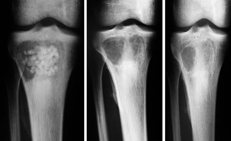 Гематогенний остеомієліт: лікування і профілактика