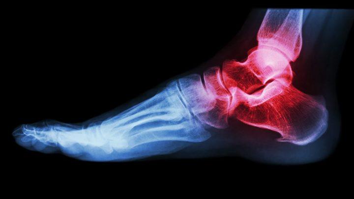 Остеомієліт: причини захворювання, основні симптоми, лікування і профілактика