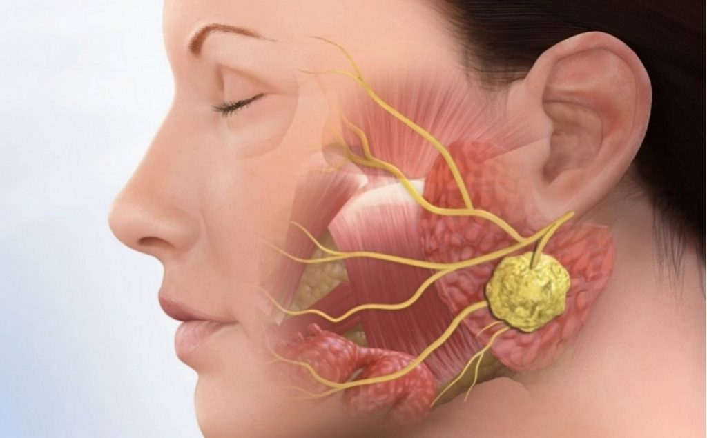 Пухлини слинних залоз: причини захворювання, основні симптоми, лікування і профілактика