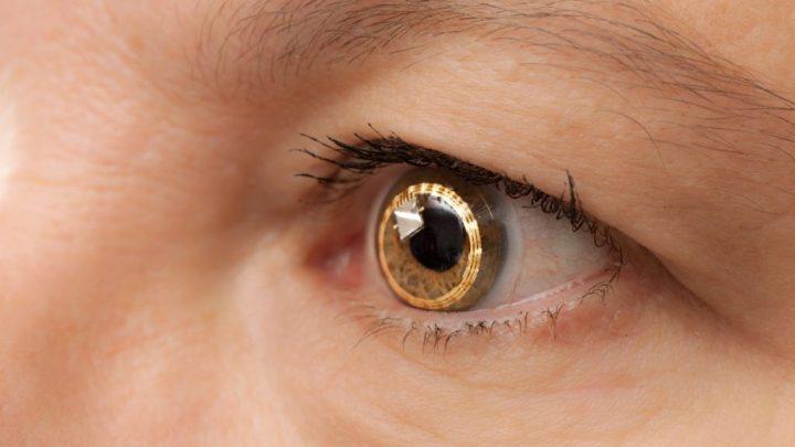 Офтальмоміаз: причини захворювання, основні симптоми, лікування і профілактика