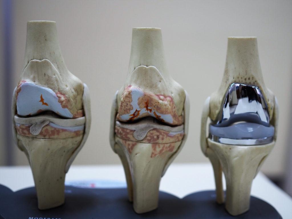 Остеоартроз: причини захворювання, основні симптоми, лікування і профілактика