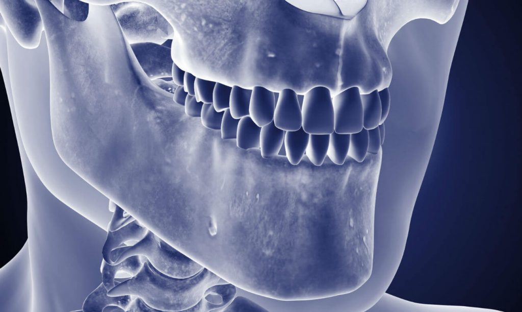 Остеомієліт - лікування і симптоми остемієлітах щелепи
