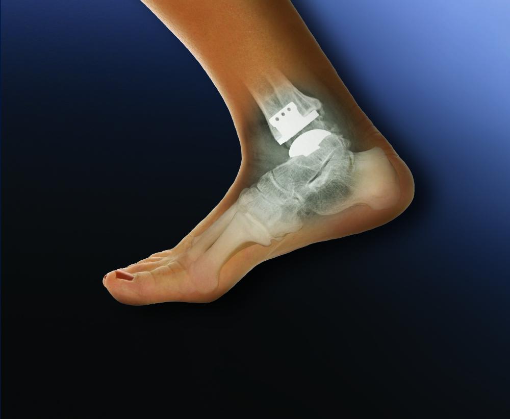 Деформуючий остеоартроз: причини захворювання, основні симптоми, лікування і профілактика