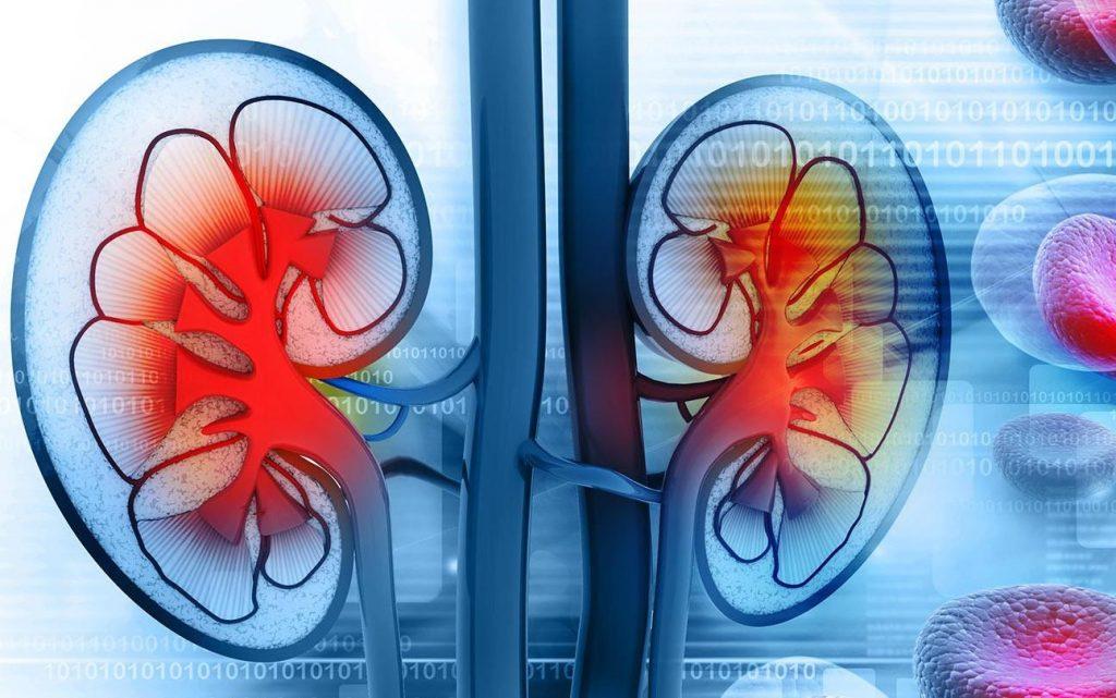 Паранефрит: причини захворювання, основні симптоми, лікування і профілактика